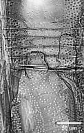 APOCYNACEAE Aspidosperma cruentum