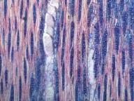 LEGUMINOSAE CAESALPINIOIDEAE Tetraberlinia bifoliolata
