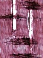 ANACARDIACEAE Euroschinus falcatus