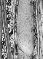 MALVACEAE GREWIOIDEAE Mollia lepidota