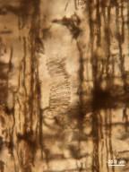 HAMAMELIDACEAE Hancock Tree