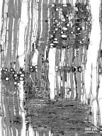CUNONIACEAE Cunonia capensis