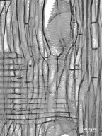 FAGACEAE Castanea dentata