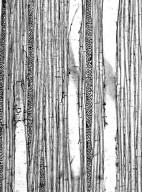 AQUIFOLIACEAE Ilex sclerophylloides