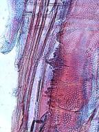 BIGNONIACEAE Fernandoa adenophylla