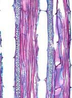 BIGNONIACEAE Pyrostegia venusta