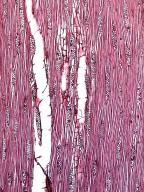 BIGNONIACEAE Radermachera glandulosa