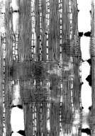 LEGUMINOSAE DIALIOIDEAE Dialium madagascariense