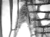 ANNONACEAE Anaxagorea dolichocarpa