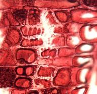 CALOPHYLLACEAE Haploclathra paniculata