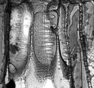 CLUSIACEAE Chrysochlamys weberbaueri
