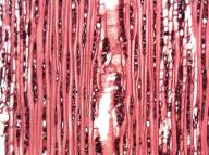 CHRYSOBALANACEAE Chrysobalanus icaco