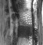 ROSACEAE Hagenia abyssinica
