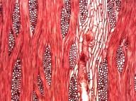LEGUMINOSAE MIMOSOIDEAE Prosopis nigra