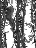 KIRKIACEAE Kirkia acuminata