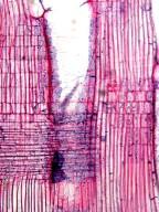 ELAEOCARPACEAE Elaeocarpus dolichostylus