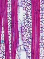 LECYTHIDACEAE Barringtonia macrostachya