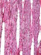 ELAEOCARPACEAE Elaeocarpus lacunosis