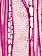 ELAEOCARPACEAE Echinocarpus assamicus
