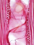 ANACARDIACEAE Rhus chinensis