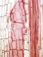 MALVACEAE STERCULIOIDEAE Basiloxylon brasiliensis