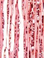 CELASTRACEAE Maytenus obtusifolia