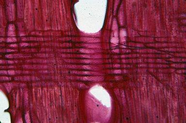 ASTEROPEIACEAE Asteropeia micraster