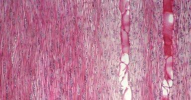 LEGUMINOSAE CAESALPINIOIDEAE Peltophorum dubium
