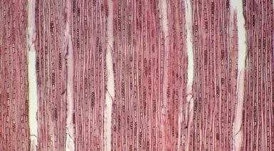 EUPHORBIACEAE Neoscortechinia forbesii