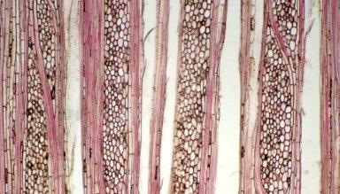 METTENIUSACEAE Metteniusa nucifera
