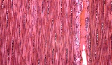 LEGUMINOSAE CAESALPINIOIDEAE Mimosoid Clade Albizia papuana