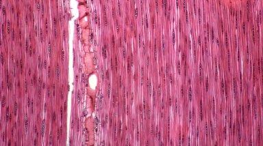 LEGUMINOSAE CAESALPINIOIDEAE Mimosoid Clade Archidendropsis granulosa