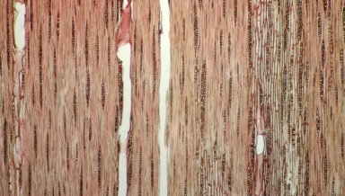 LEGUMINOSAE CAESALPINIOIDEAE Mimosoid Clade Calliandra hymenaeodes