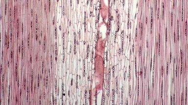 LEGUMINOSAE CAESALPINIOIDEAE Mimosoid Clade Inga huberi