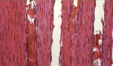 LEGUMINOSAE CAESALPINIOIDEAE Mimosoid Clade Inga stipularis
