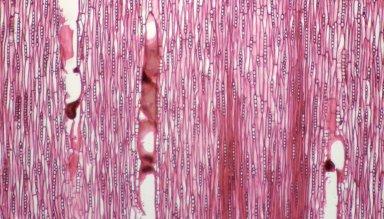 LEGUMINOSAE CAESALPINIOIDEAE Mimosoid Clade Pararchidendron pruinosum