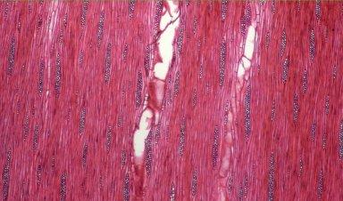 LEGUMINOSAE CAESALPINIOIDEAE Mimosoid Clade Piptadenia gonoacantha