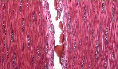 LEGUMINOSAE CAESALPINIOIDEAE Mimosoid Clade Samanea tubulosa