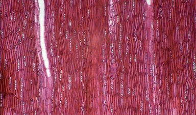NYCTAGINACEAE Pisonia rotundata