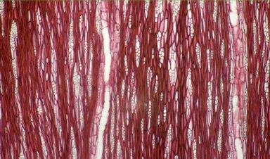 NYCTAGINACEAE Rockia sandwicensis
