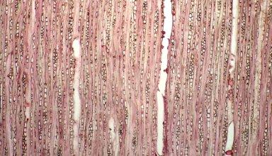 RUBIACEAE Casasia clusifolia