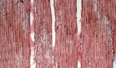 SAPOTACEAE Chrysophyllum cuneifolium