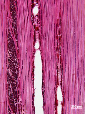 CASUARINACEAE Gymnostoma papuanum