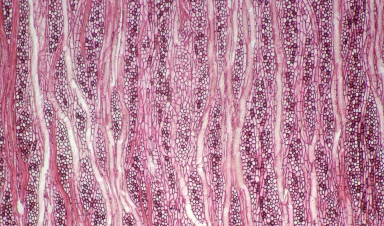 LOGANIACEAE Strychnos lucida