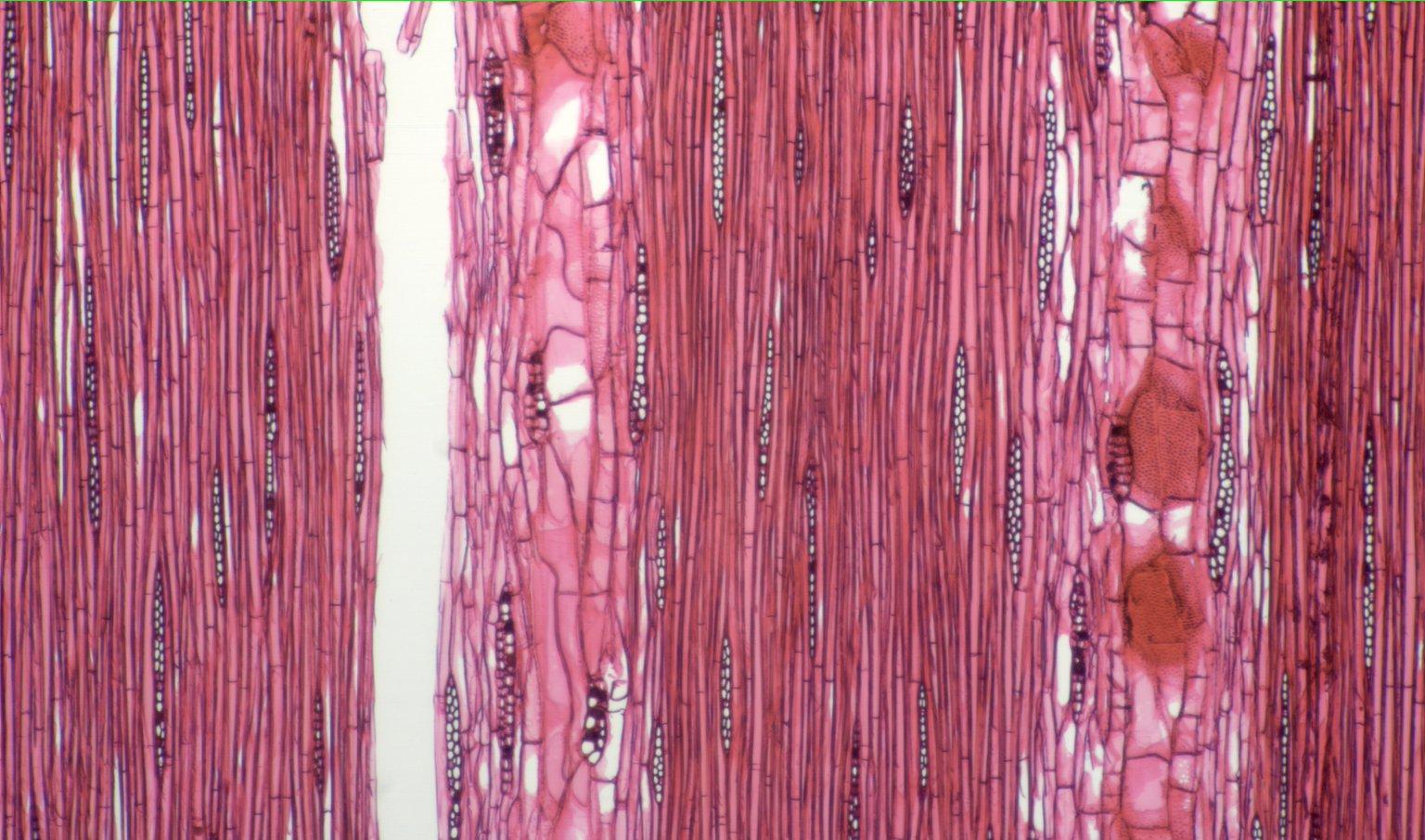 LEGUMINOSAE CAESALPINIOIDEAE Mimosoid Clade Albizia splendens