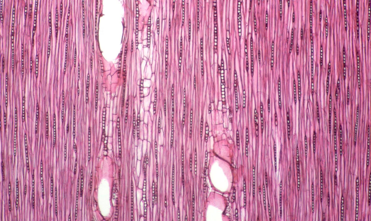 LEGUMINOSAE CAESALPINIOIDEAE Mimosoid Clade Archidendron bigeminum