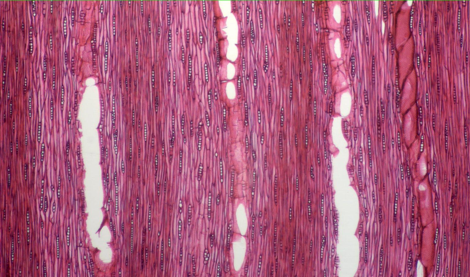 LEGUMINOSAE CAESALPINIOIDEAE Mimosoid Clade Pithecellobium dulce