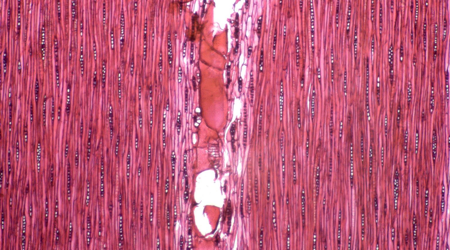 LEGUMINOSAE CAESALPINIOIDEAE Mimosoid Clade Serianthes calycina