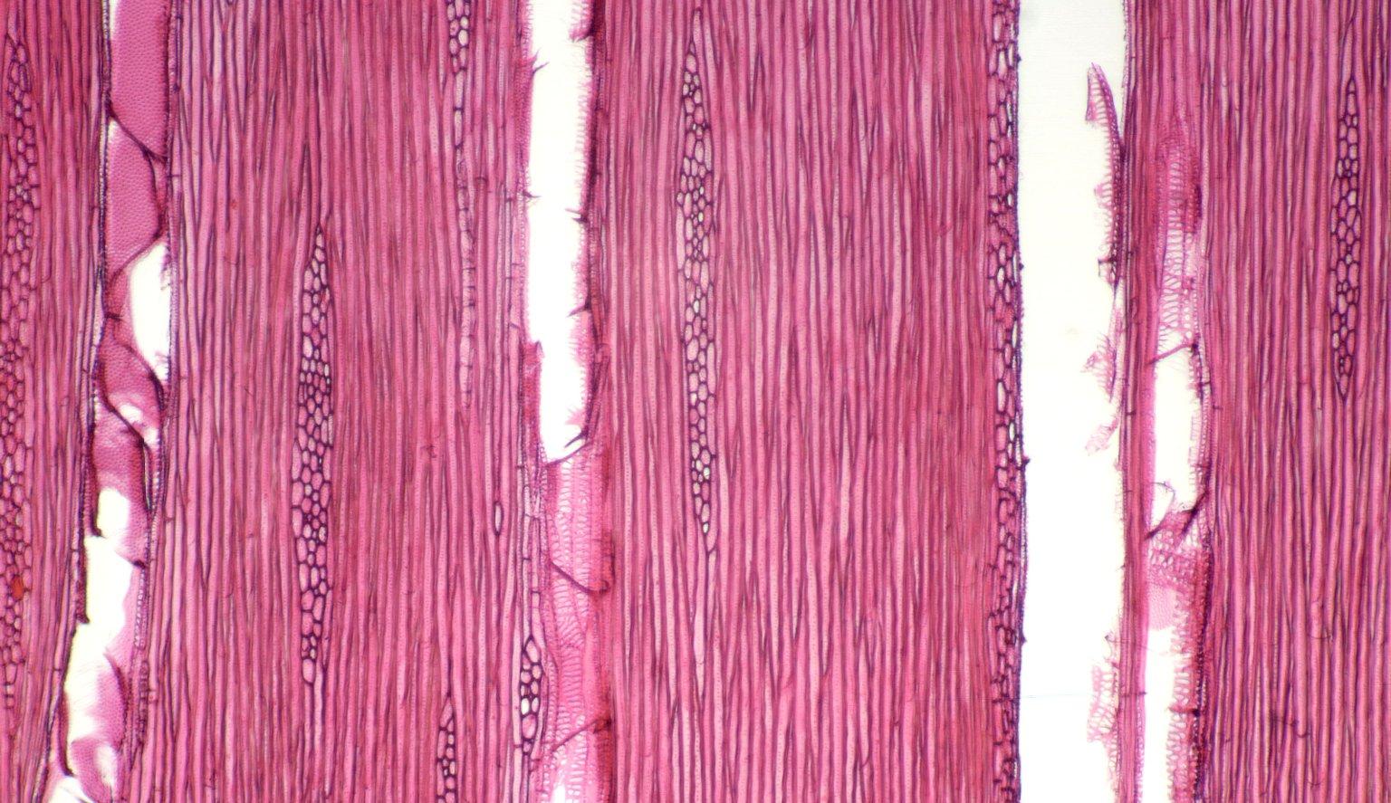 URTICACEAE Myriocarpa stipitata
