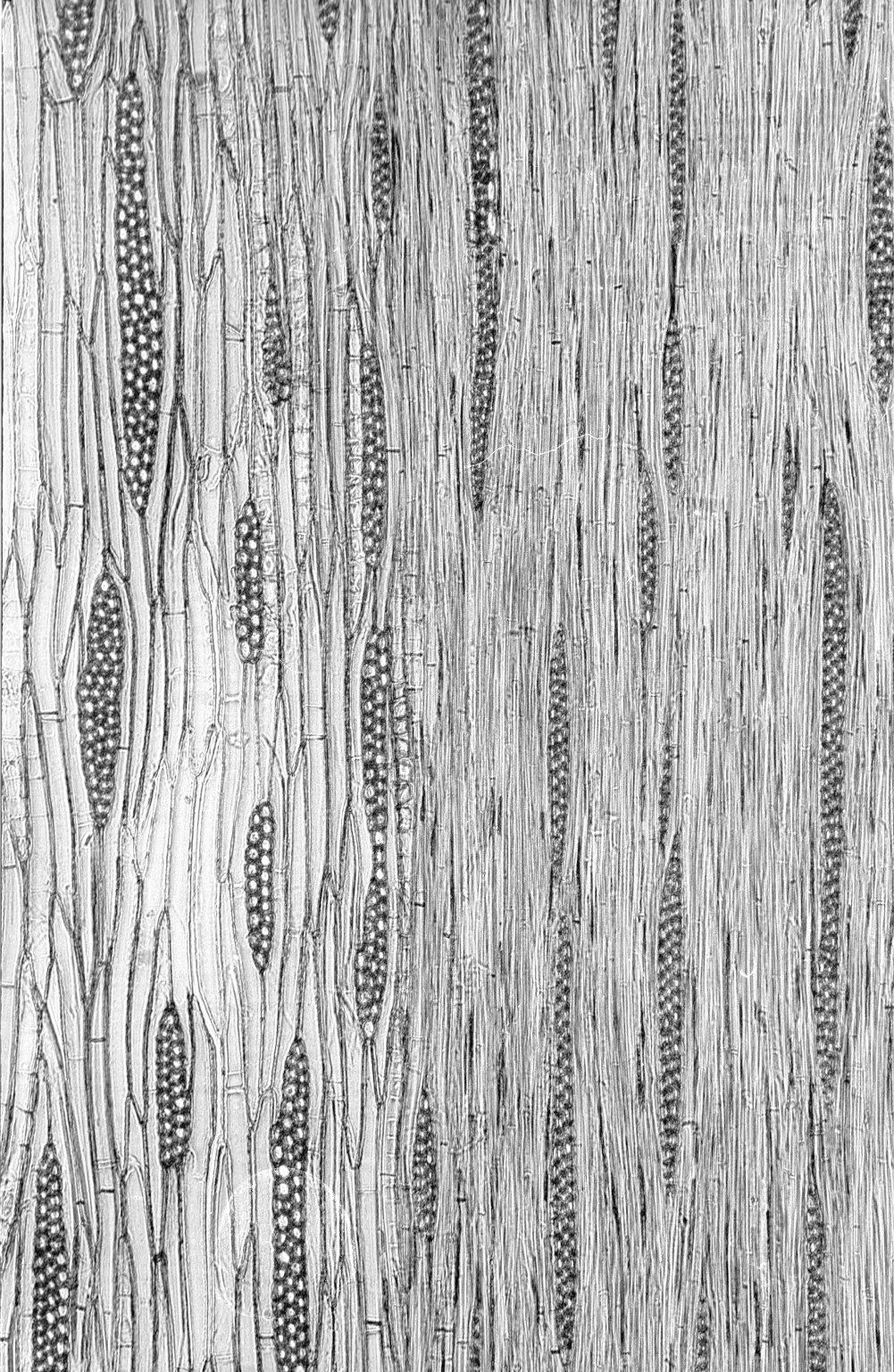 LEGUMINOSAE CAESALPINIOIDEAE Mimosoid Clade Senegalia polyphylla